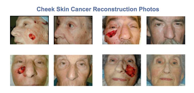 skin cancer cheek reconstruction