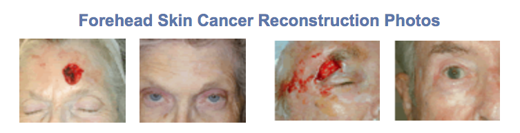 skin cancer forehead reconstruction